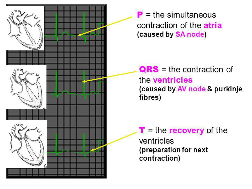 P = the simultaneous contraction of the atria (caused by SA node)
