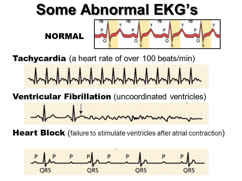 Some Abnormal EKG's NORMAL