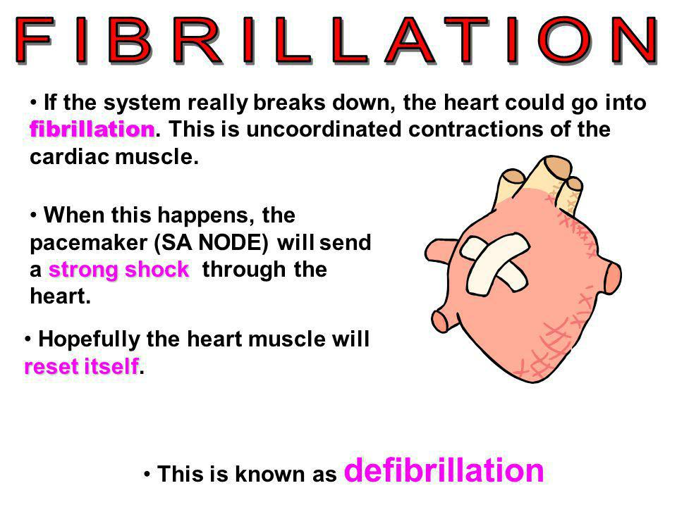 This is known as defibrillation