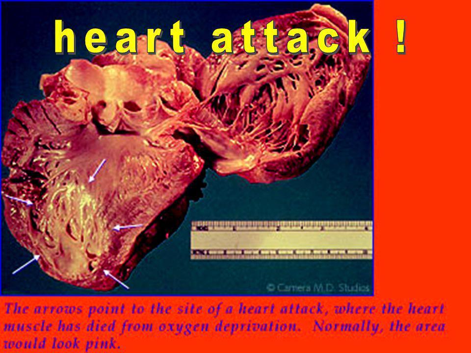 heart attack !