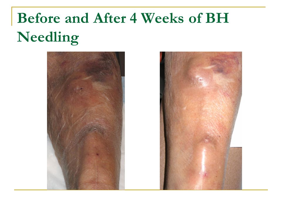 Before and After 4 Weeks of BH Needling