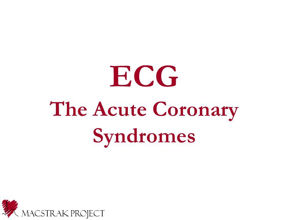 ECG The Acute Coronary Syndromes