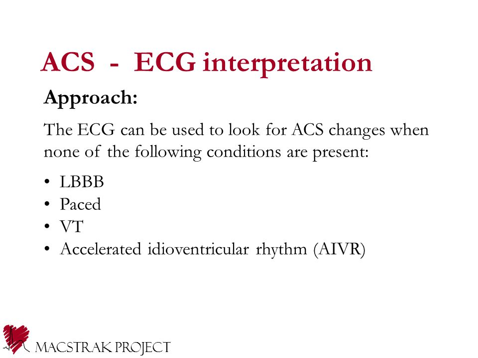 ACS - ECG interpretation