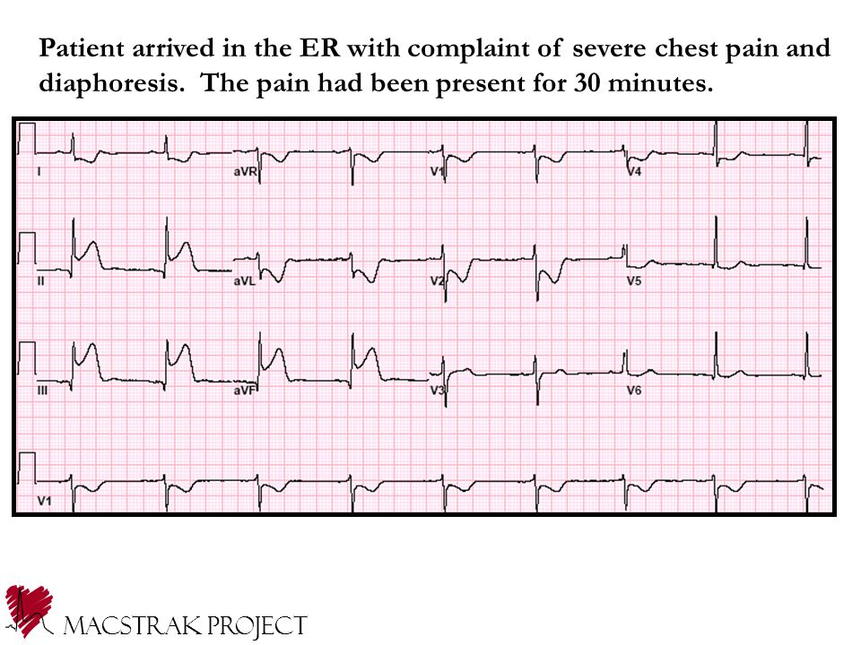 Patient arrived in the ER with complaint of severe chest pain and diaphoresis.