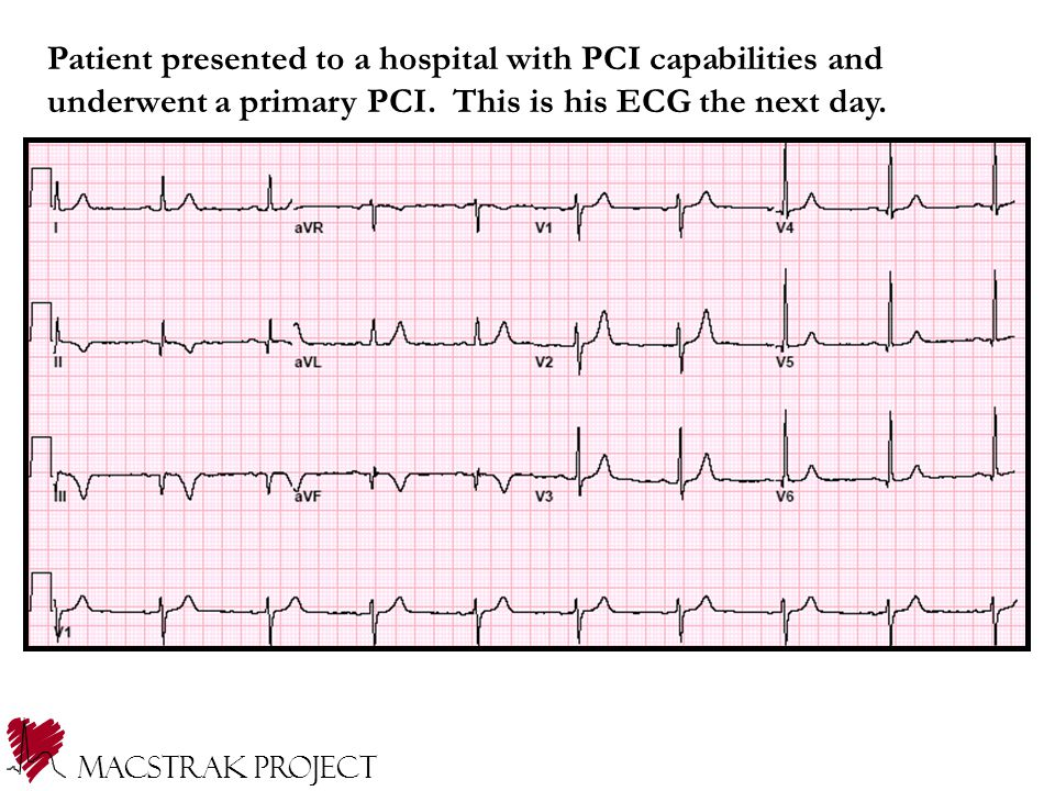 Patient presented to a hospital with PCI capabilities and underwent a primary PCI.