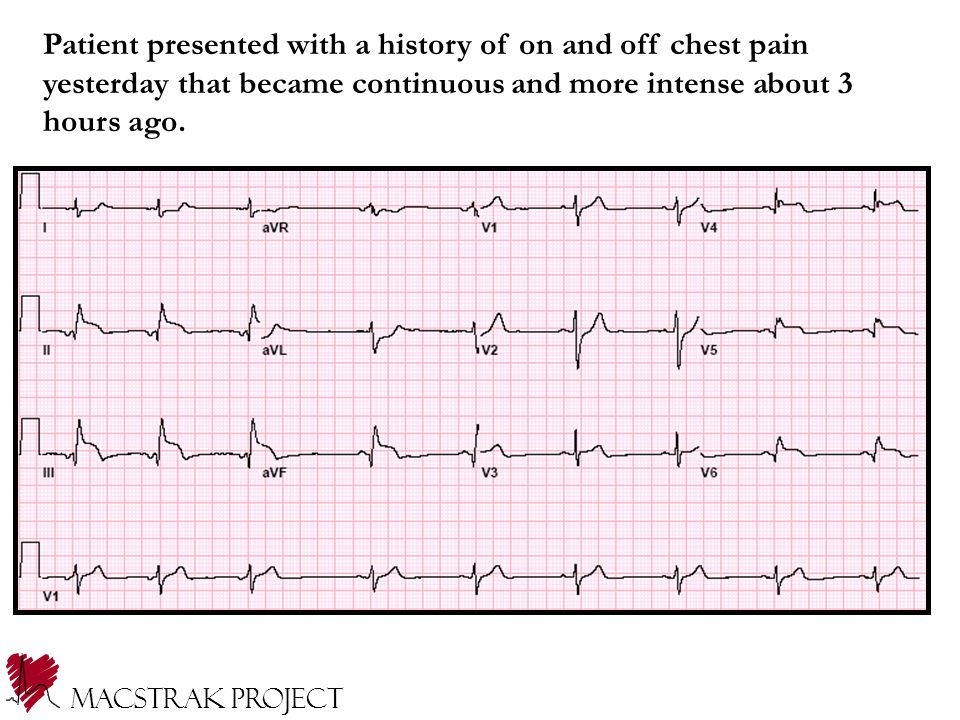 Patient presented with a history of on and off chest pain yesterday that became continuous and more intense about 3 hours ago.
