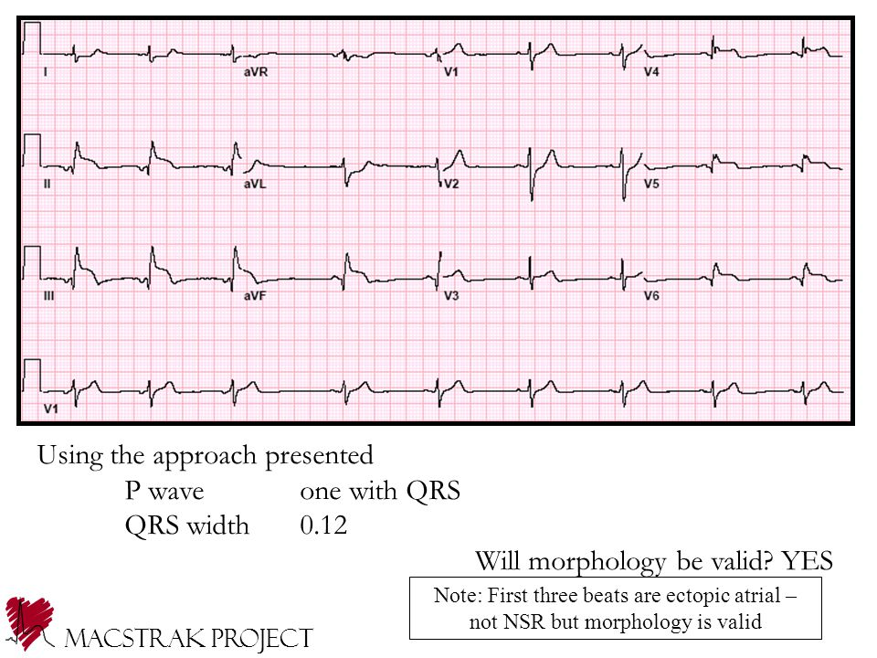Using the approach presented P wave one with QRS QRS width 0.12