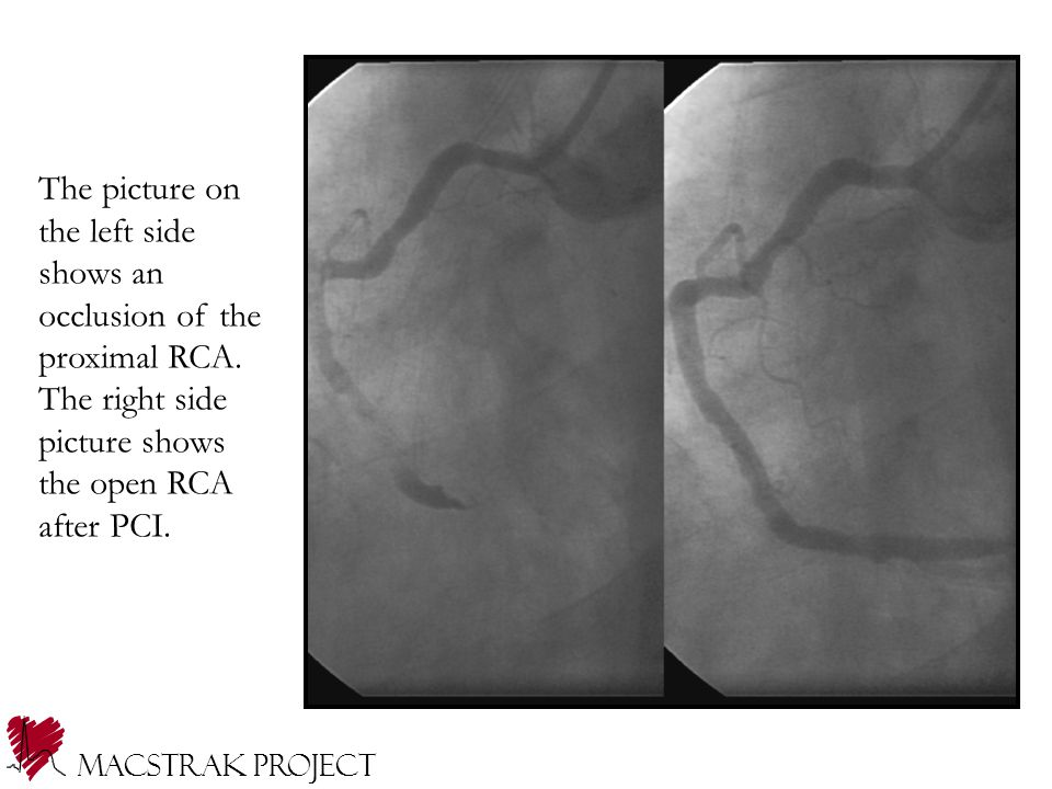 The picture on the left side shows an occlusion of the proximal RCA