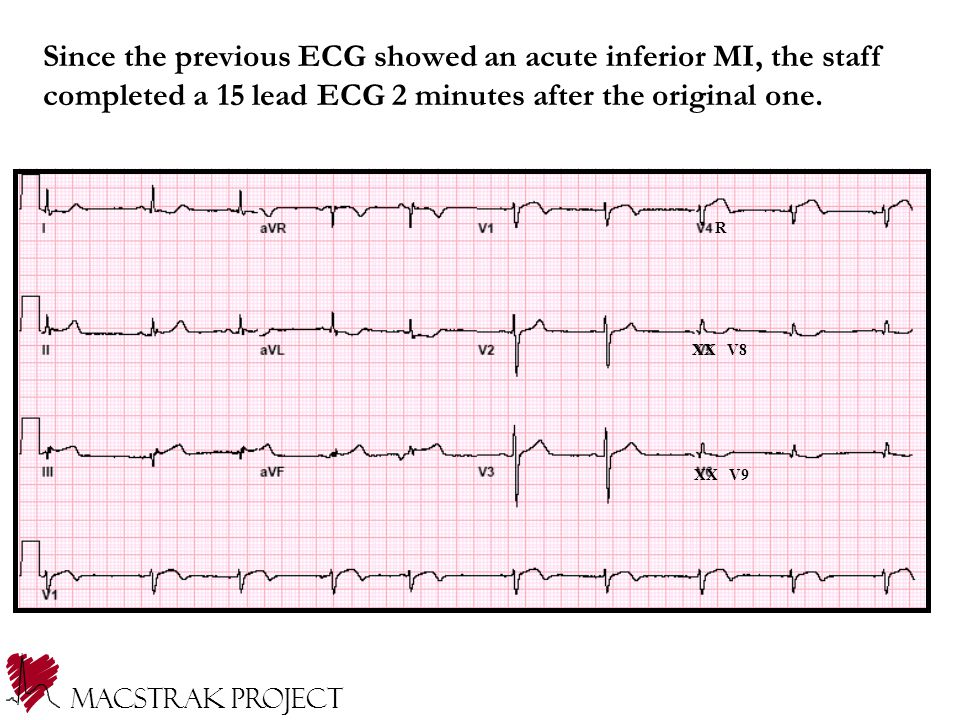 Since the previous ECG showed an acute inferior MI, the staff completed a 15 lead ECG 2 minutes after the original one.