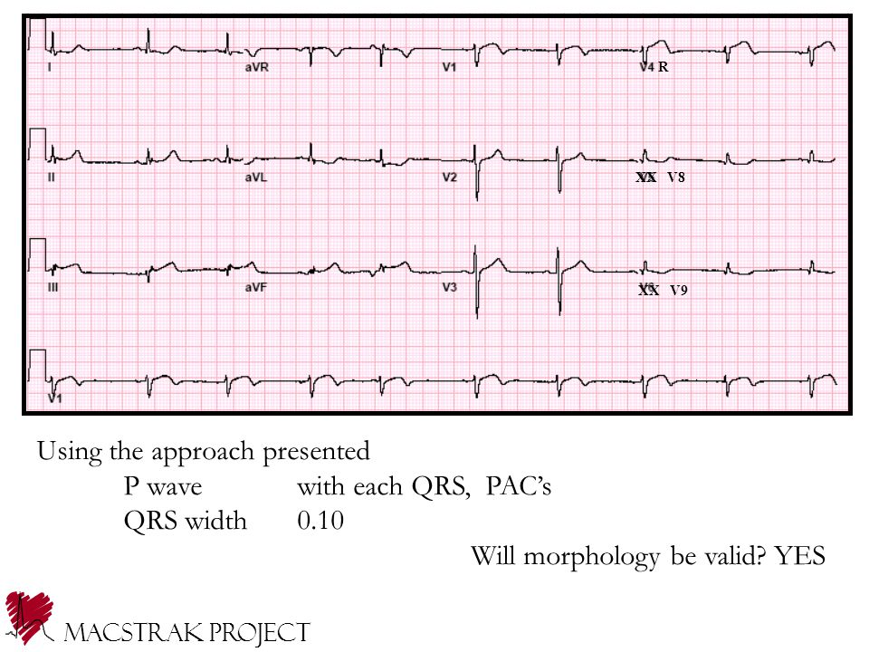 Using the approach presented P wave with each QRS, PAC's