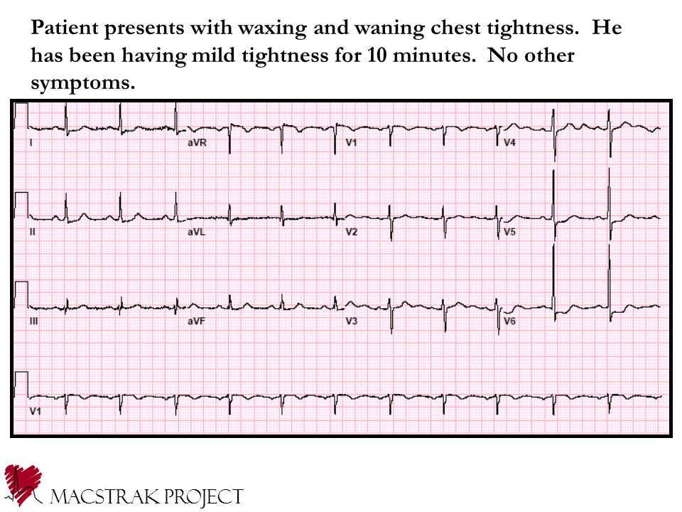 Patient presents with waxing and waning chest tightness