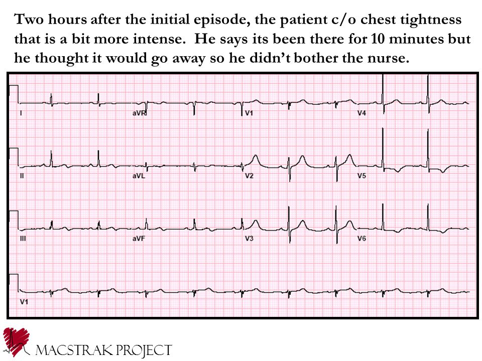 Two hours after the initial episode, the patient c/o chest tightness that is a bit more intense.