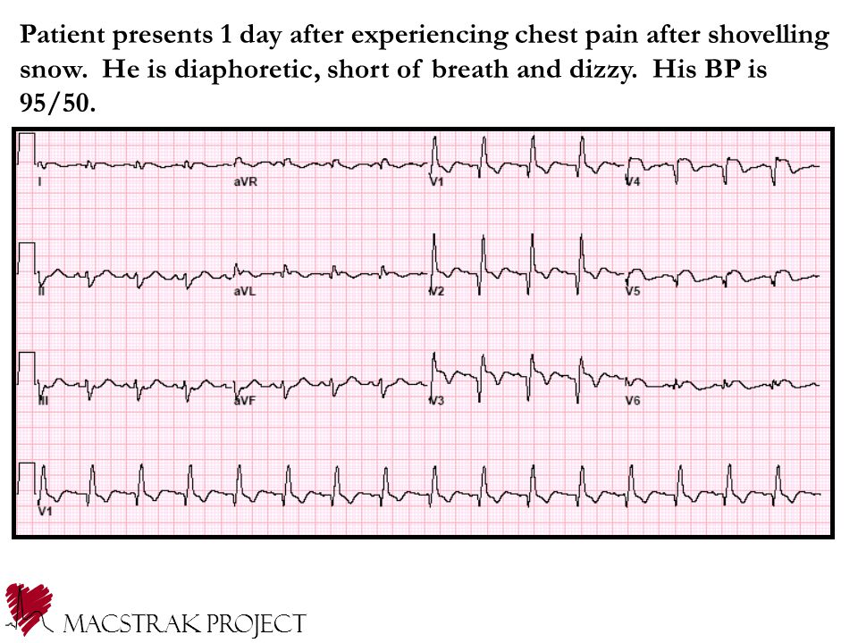 Patient presents 1 day after experiencing chest pain after shovelling snow.