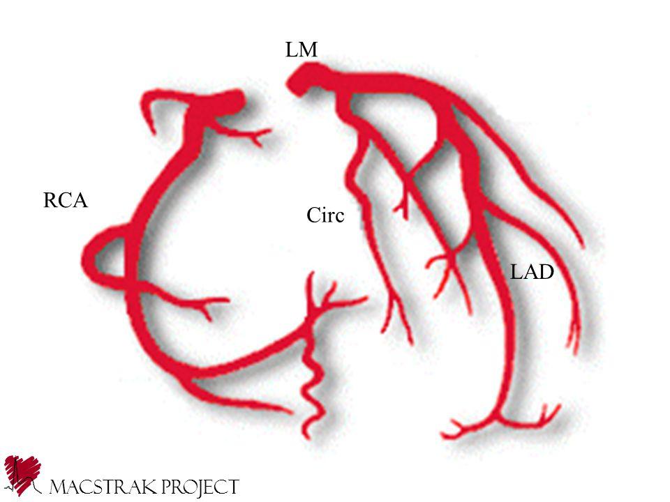 LM RCA Circ LAD