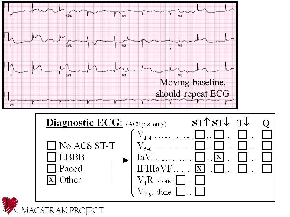 Moving baseline, should repeat ECG