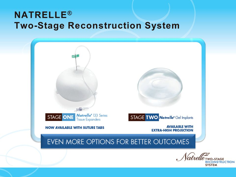 NATRELLE® Two-Stage Reconstruction System