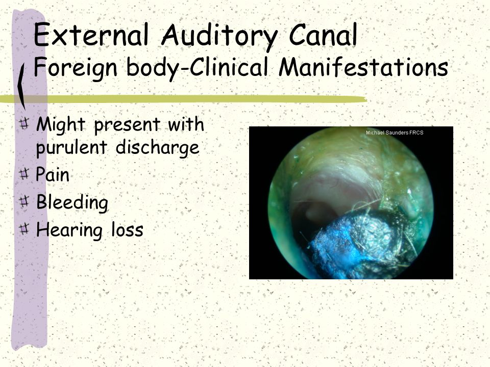 External Auditory Canal Foreign body-Clinical Manifestations