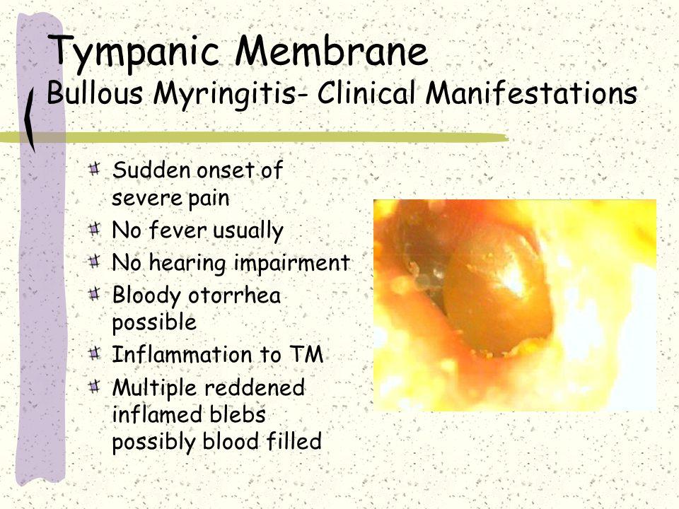 Tympanic Membrane Bullous Myringitis- Clinical Manifestations