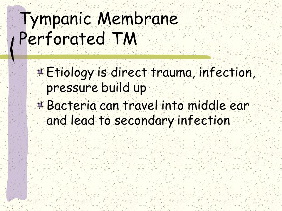 Tympanic Membrane Perforated TM