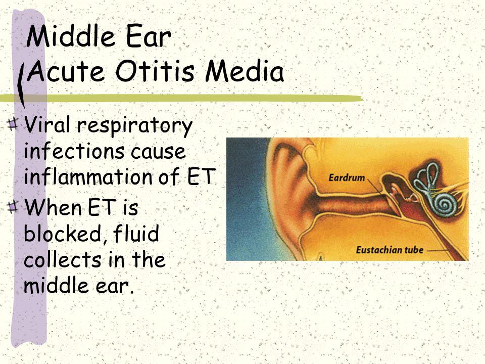 Middle Ear Acute Otitis Media