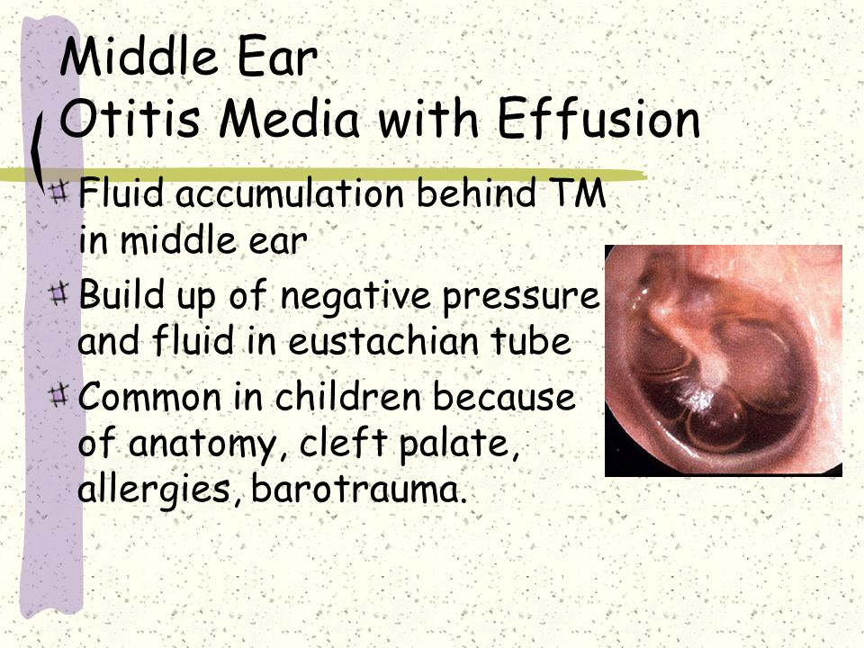 Middle Ear Otitis Media with Effusion