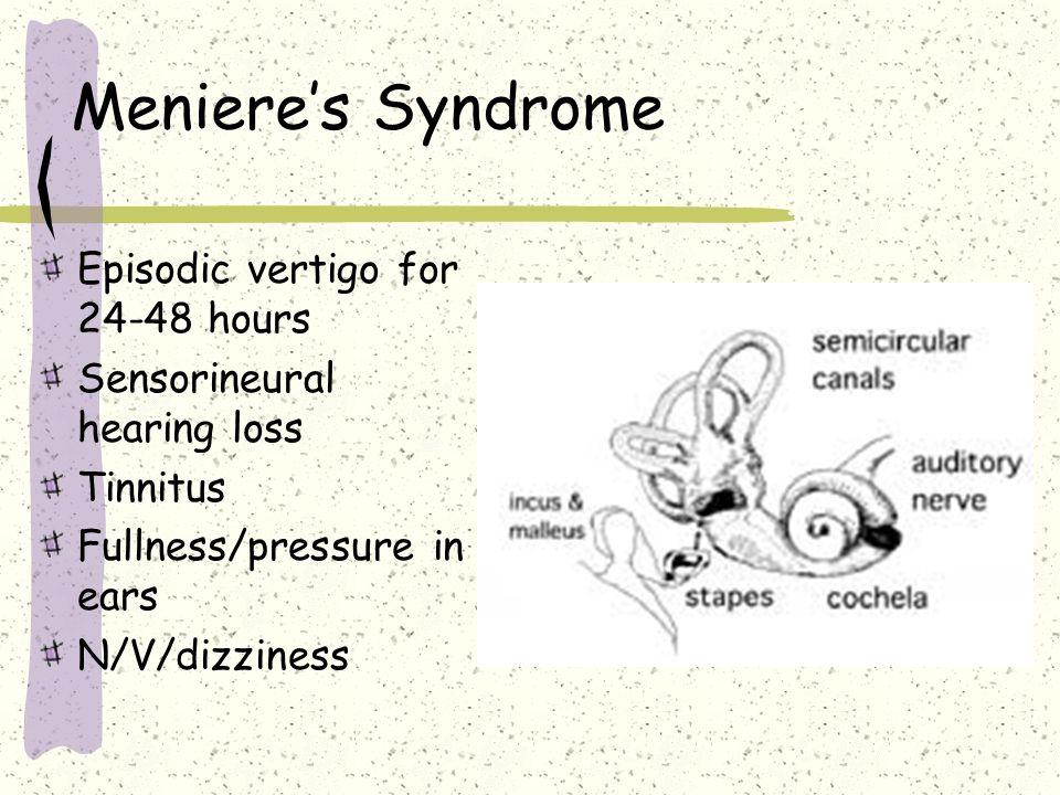 Meniere's Syndrome Episodic vertigo for 24-48 hours