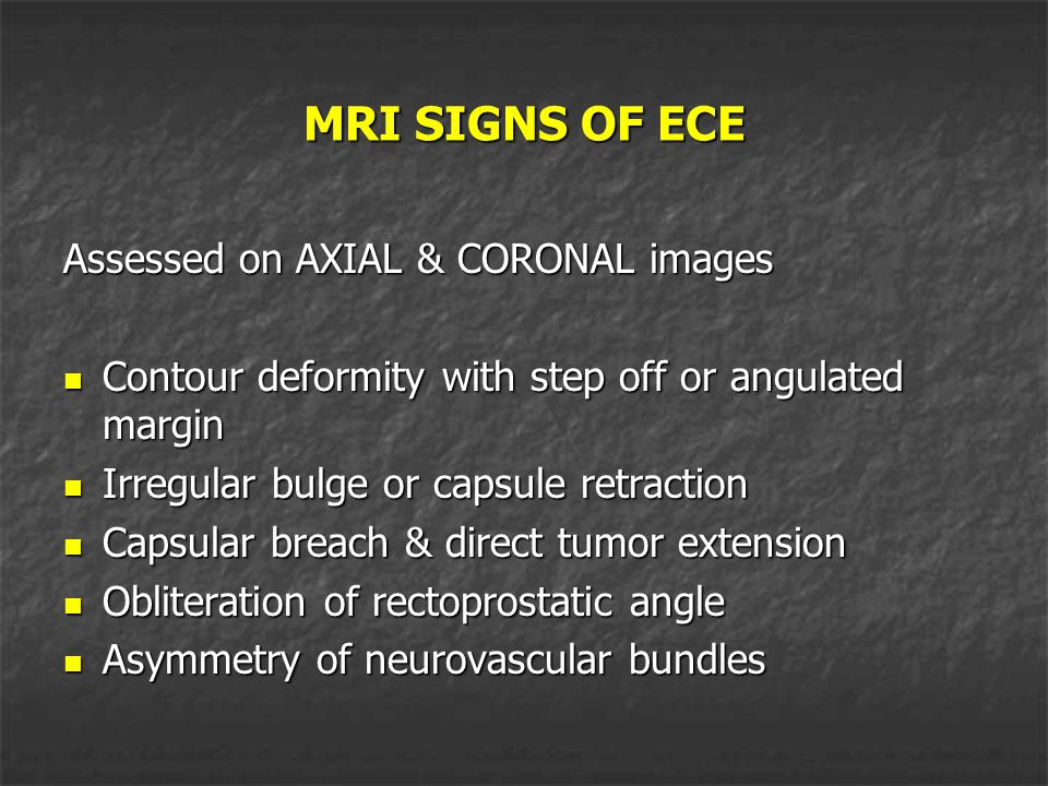 MRI SIGNS OF ECE Assessed on AXIAL & CORONAL images