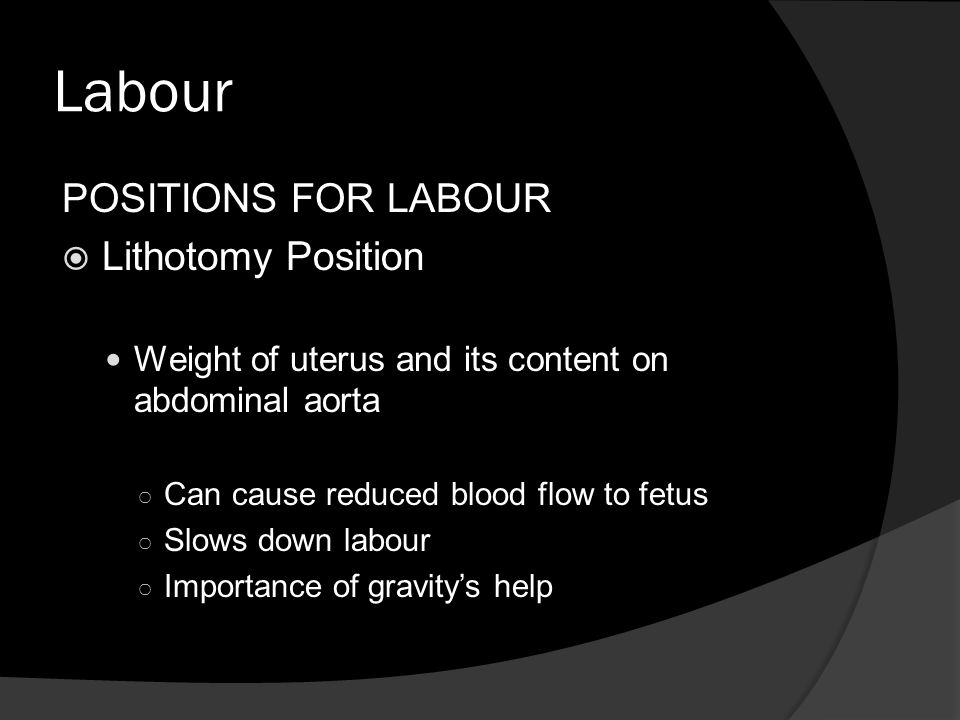 Labour POSITIONS FOR LABOUR Lithotomy Position