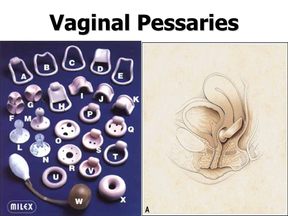 Vaginal Pessaries Intravaginal devices (Continence pessaries)