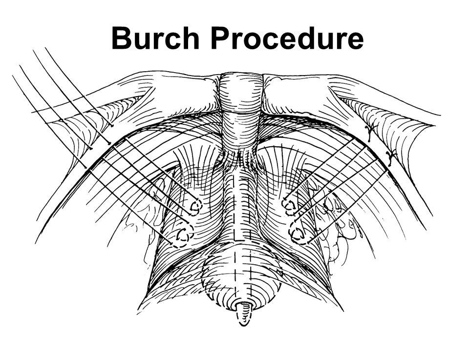 Burch Procedure Retropubic urethropexy
