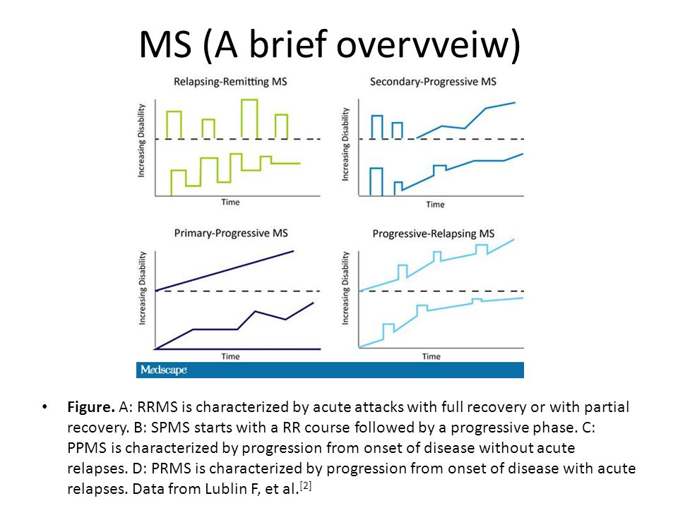 MS (A brief overvveiw)