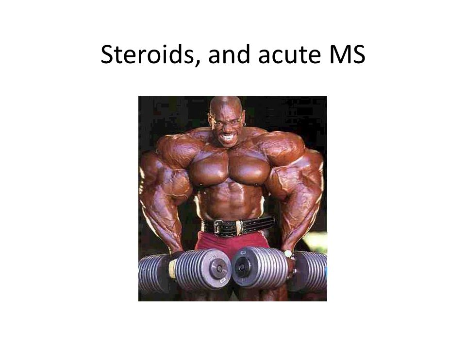 Steroids, and acute MS