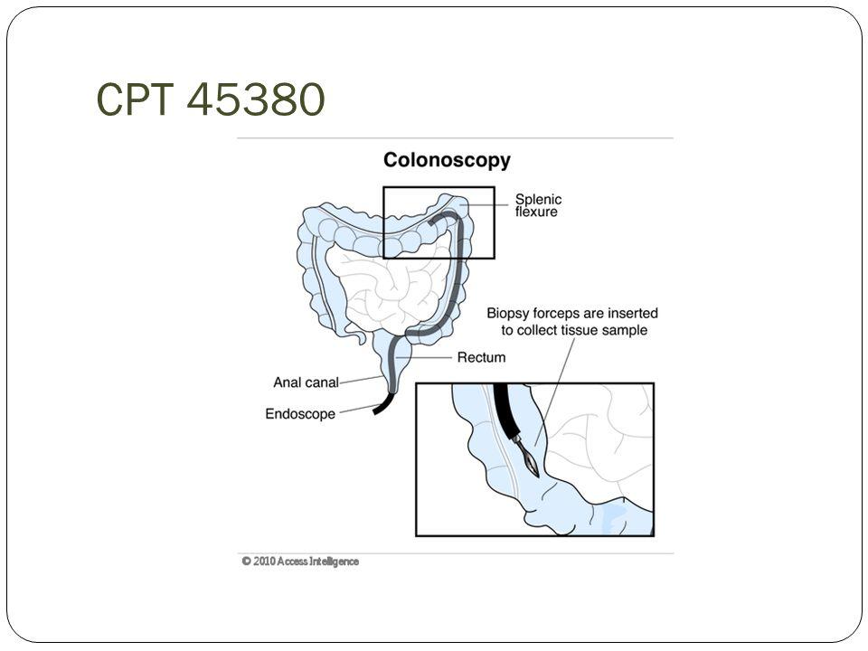 CPT 45380