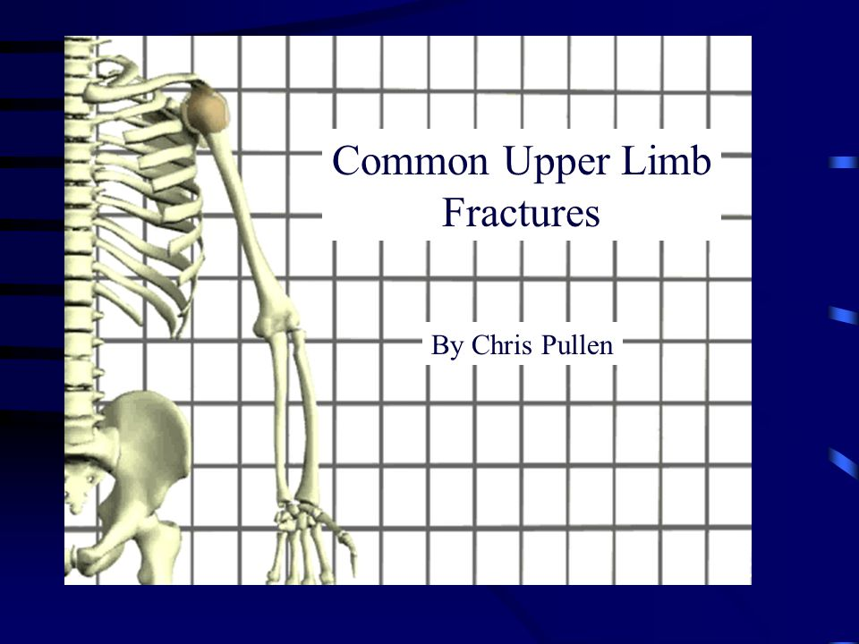 Common Upper Limb Fractures By Chris Pullen