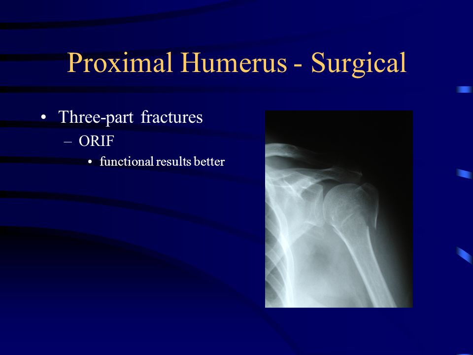 Proximal Humerus - Surgical