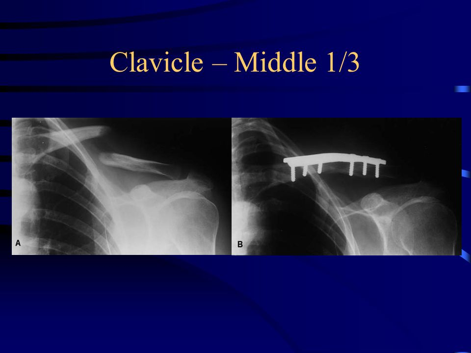 Clavicle – Middle 1/3