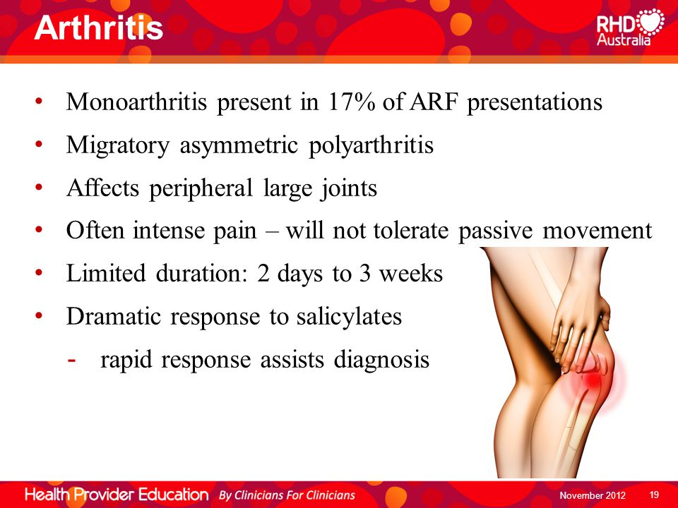 Arthritis Monoarthritis present in 17% of ARF presentations