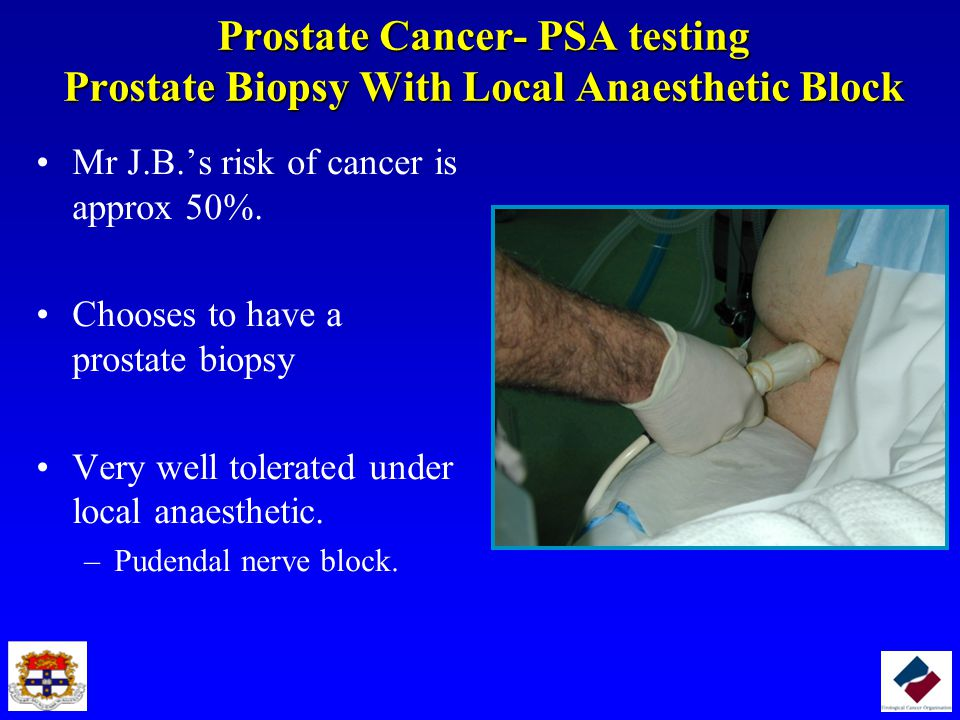 Prostate Cancer- PSA testing Prostate Biopsy With Local Anaesthetic Block