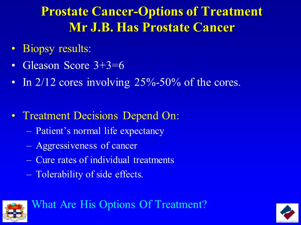 Prostate Cancer-Options of Treatment Mr J.B. Has Prostate Cancer