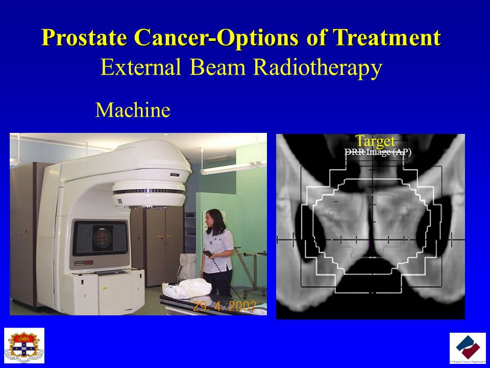 Prostate Cancer-Options of Treatment External Beam Radiotherapy