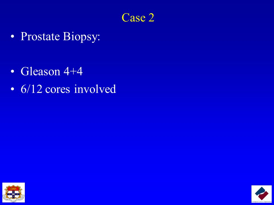 Case 2 Prostate Biopsy: Gleason 4+4 6/12 cores involved