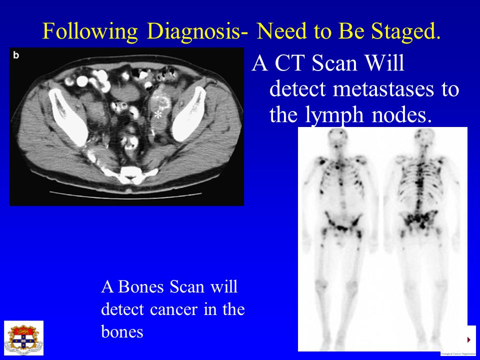 Following Diagnosis- Need to Be Staged.