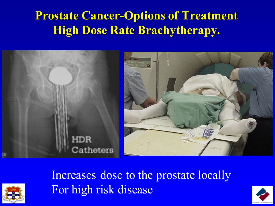 Prostate Cancer-Options of Treatment High Dose Rate Brachytherapy.