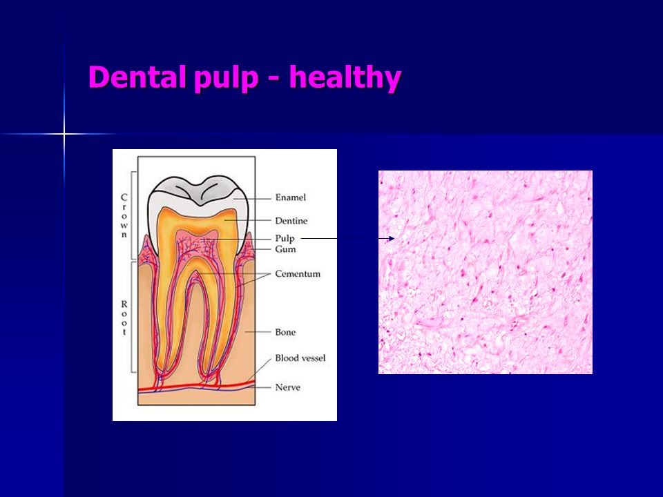 Dental pulp - healthy