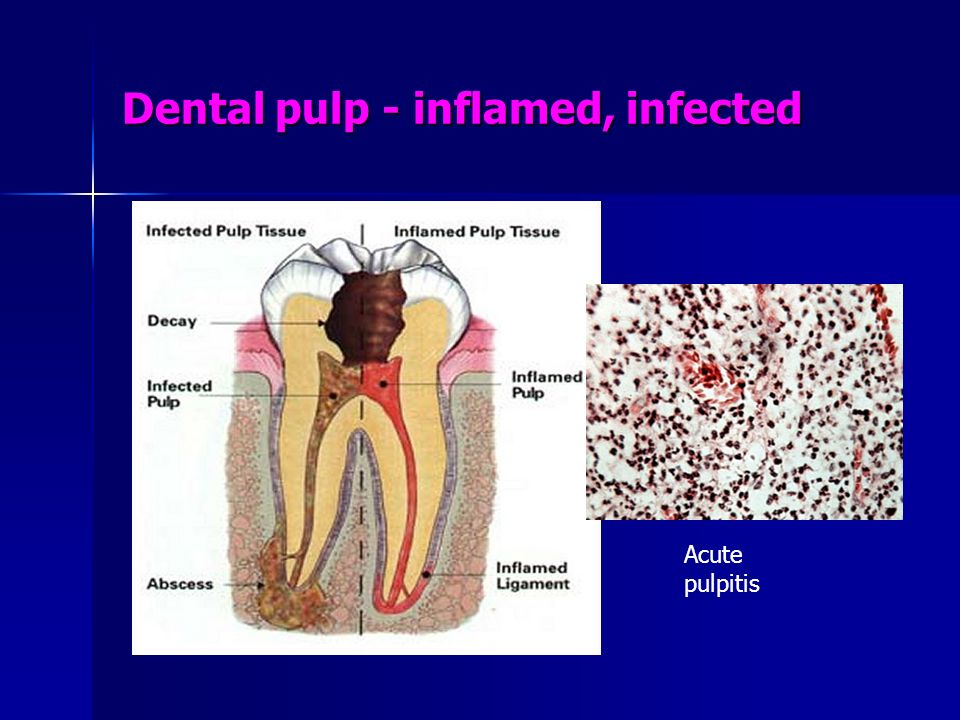 Dental pulp - inflamed, infected