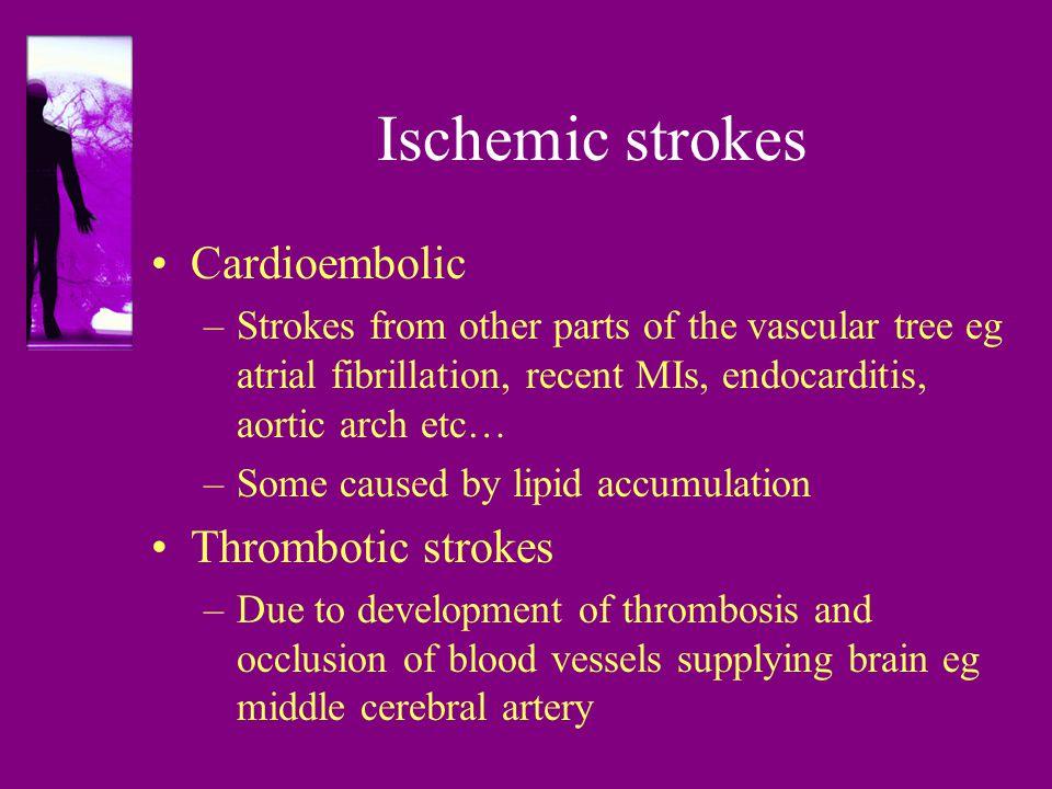 Ischemic strokes Cardioembolic Thrombotic strokes
