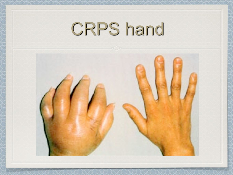 CRPS hand