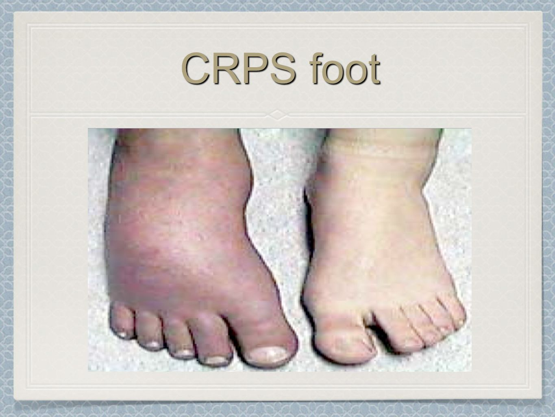 CRPS foot