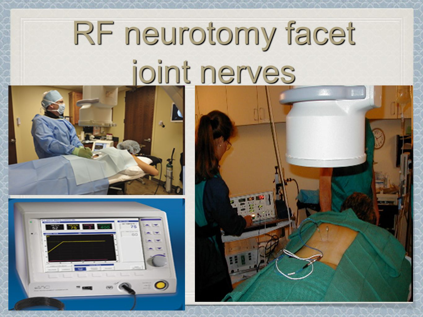 RF neurotomy facet joint nerves