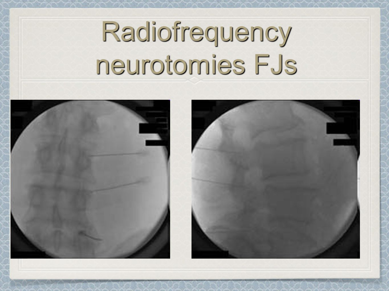Radiofrequency neurotomies FJs